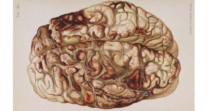 Damaged-Brain